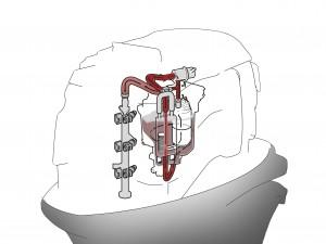 Brandstofinspuitsysteem